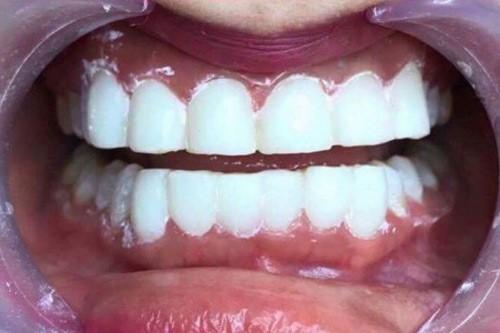 phủ trắng răng