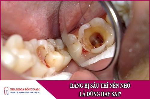 răng bị sâu thì nên nhổ là đúng hay sai