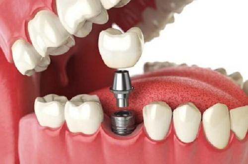 giải pháp trồng răng implant
