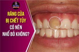 Răng cửa bị chết tủy có nên nhổ bỏ không