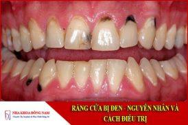 nguyên nhân và cách điều trị răng cửa bị đen