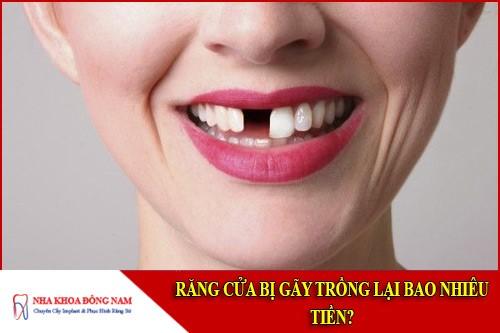 răng cửa bị gãy trồng lại bao nhiêu tiền