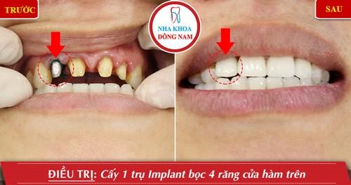 trồng răng cửa bằng implant
