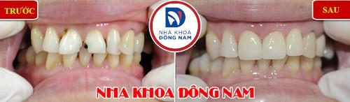 bọc sứ răng cửa bị hư tổn