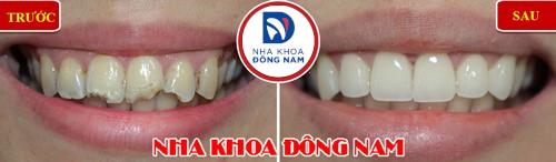 bọc sứ cho răng cửa mẻ