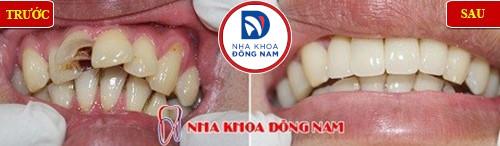 bọc sứ cho răng cửa bị sâu