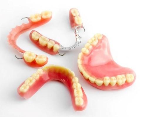răng giả tháo lắp