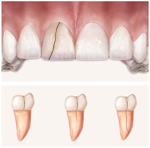 răng cửa bị nứt dọc