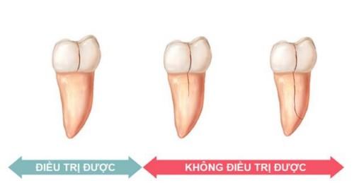 trường hợp bị nứt răng