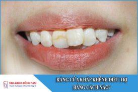 Răng cửa khấp khểnh điều trị bằng cách nào