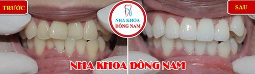 bọc sứ cho răng cửa bị khấp khểnh