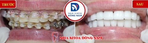 niềng răng cho răng cửa bị khấp khểnh