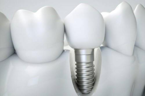 răng implant có khó vệ sinh không