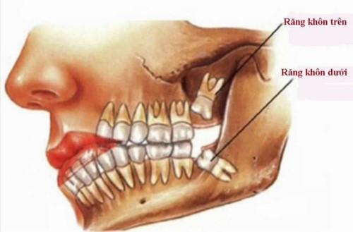 vị trí răng khôn