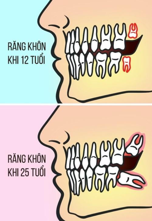độ tuổi mọc răng khôn