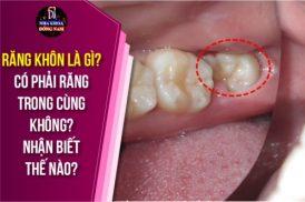 Răng khôn là gì? Có phải răng trong cùng không? Nhận biết thế nào?
