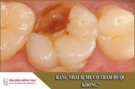 răng nhai bị mẻ có trám được không
