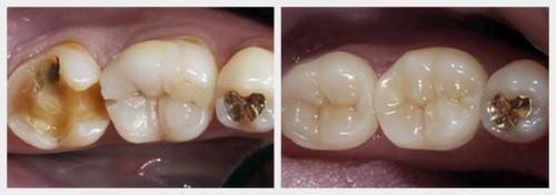 bọc sứ cho răng nhai bị mẻ