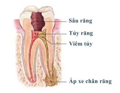 viêm tủy răng nhai