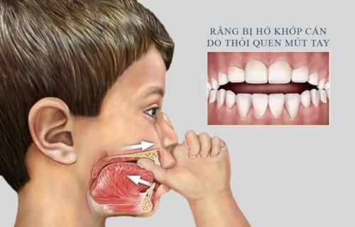 răng hở khớp cắn