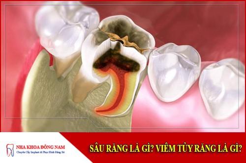 Sâu răng là gì? Viêm tủy răng là gì?
