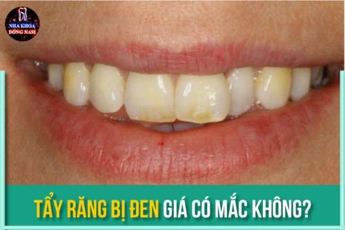tẩy răng bị đen giá có mắc không