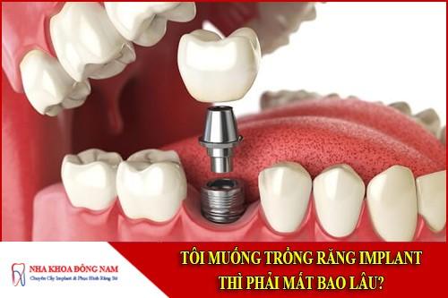 trồng răng implant thì phải mất bao lâu