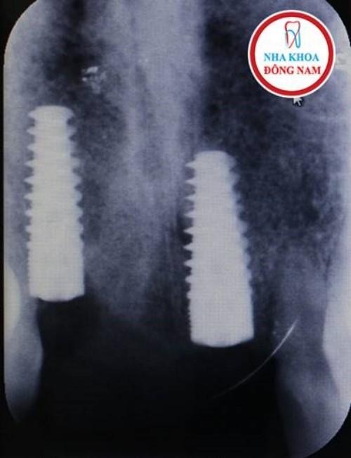 chụp x-quang kiểm tra tình trạng implant