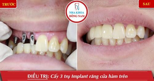 găn răng sứ trên implant