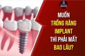 Tôi muốn trồng răng Implant thì phải mất bao lâu?