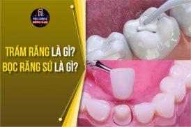 Trám răng là gì? Bọc răng sứ là gì?