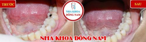 trám răng nhai bị sâu