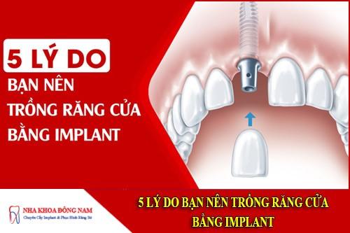 5 lý do bạn nên trồng răng cửa bằng implant
