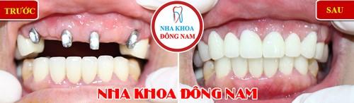 trồng implant cho răng cửa