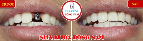 trồng 1 trụ implant răng cửa