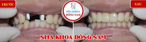 cấy 2 trụ implant răng cửa