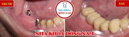 trồng giả implant cho răng hàm