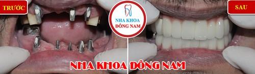 trồng răng giả implant 2 hàm