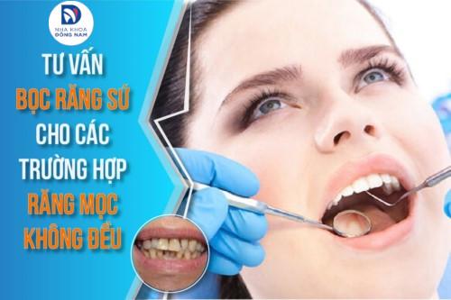 Tư vấn bọc răng sứ cho trường hợp răng mọc không đều