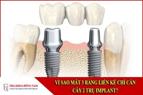 Vì sao mất 3 răng liền kề chỉ cần cấy 2 trụ Implant