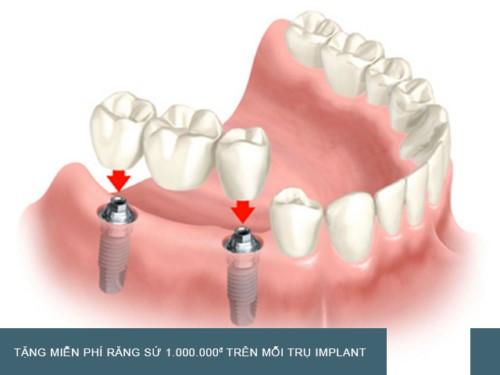 mô phỏng trồng răng hàm bằng implant