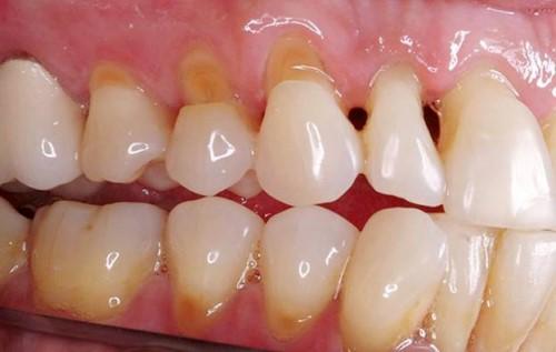 mòn cổ răng