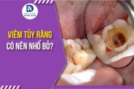 Viêm tủy răng có nên nhổ bỏ