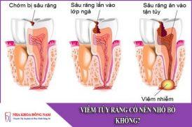 viêm tủy răng có nên nhổ bỏ không
