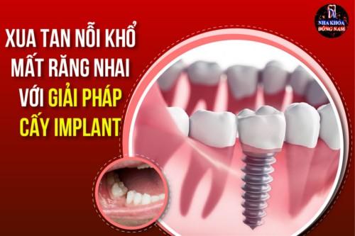 Xua tan nỗi khổ vì mất răng nhai với giải pháp cấy IMPLANT