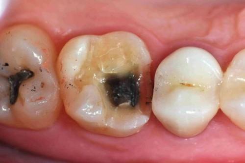 răng cấm bị bể do bệnh lý