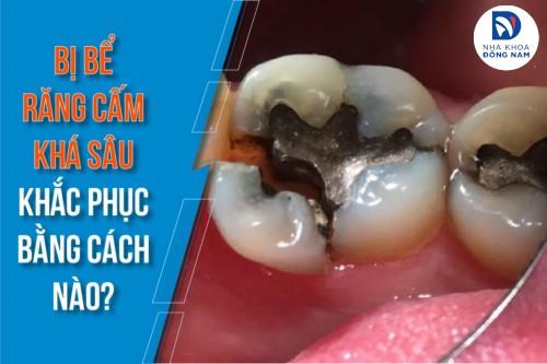 Bị bể răng cấm khá sâu khắc phục bằng cách nào