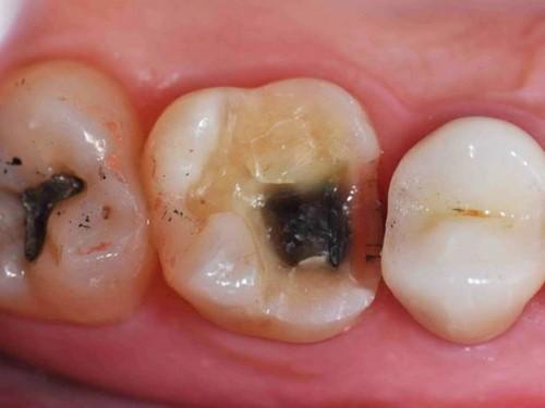 sâu răng cấm