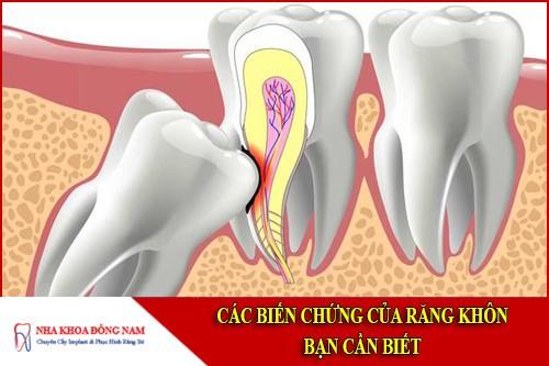 các biến chứng của răng khôn bạn cần biết