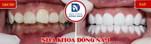 bọc sứ cho răng cửa hô